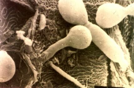 Mezzi per trattamento di un fungo di unghie e piedi